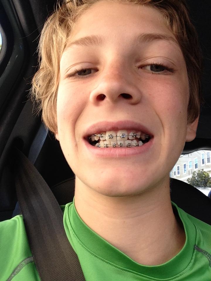 Diane: Owen with his new braces!